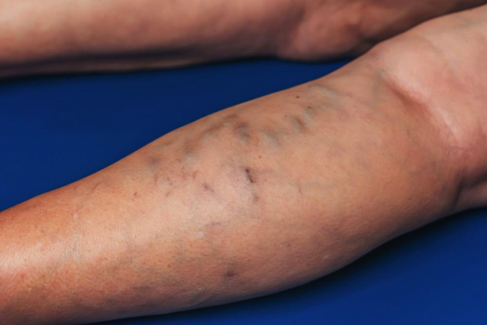 varicose vein treatment in Rock Hill